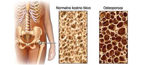 osteoporoza 1