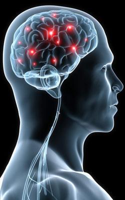 sinapse 3