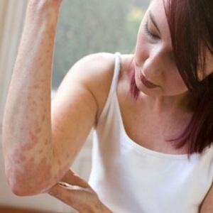 Pobedite dermatitis prirodnim putem
