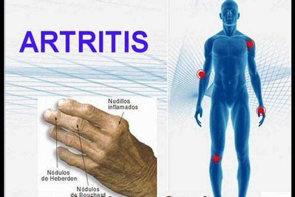 Pobedite artritis prirodnim putem