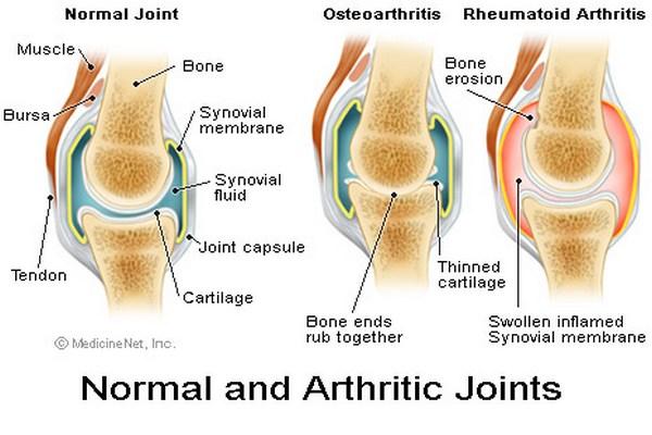 Osteoarthritis-of-Knee_clip_image001