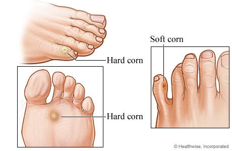 Calluses-and-corns-investigation1
