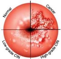 Rak grlica materice