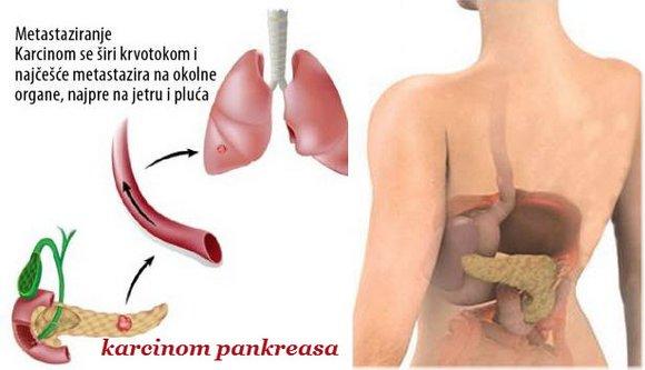 rak_pankreasa_simptomi