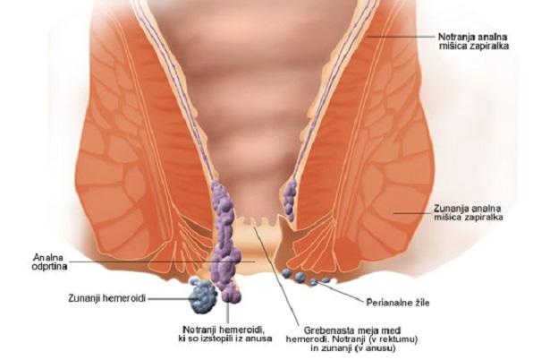 Lečenje hemoroida prirodnim putem