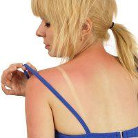 Kako ublažiti opekotine od sunca