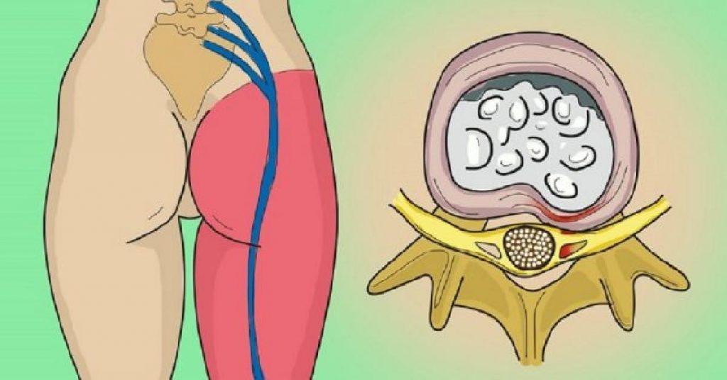 la-crisis-del-nervio-ciatico-este-sencillo-ejercicio-te-eliminara-el-malestar-en-un-abrir-y-cerrar-de-ojos-120519564