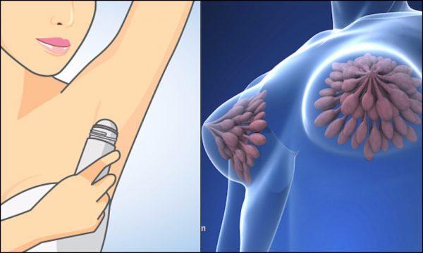 Dezodoransi mogu da uzrokuju rak dojke!