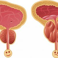Iskustvo samoizlečenja uvećane prostate