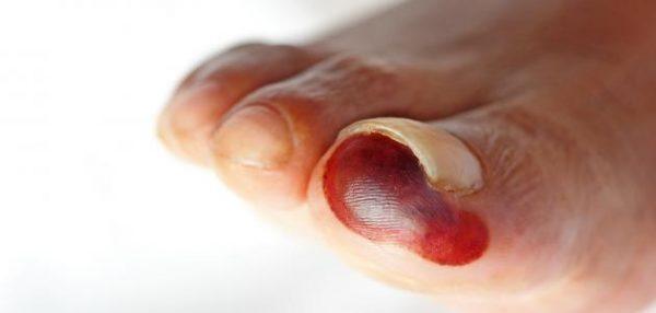 Iskustvo izlečenja gangrenoznog stopala